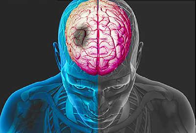senam yoga mengurangi gejala penyakit stroke