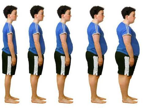 obesitas dan kegemukan