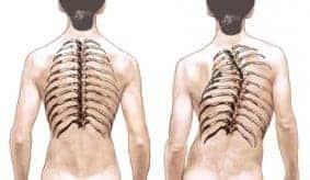 Senam Yoga Dapat Menyembuhkan Penderita Scoliosis