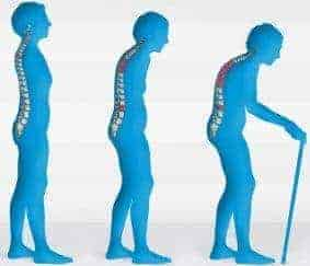 Melawan Osteoporosis dengan Senam Yoga
