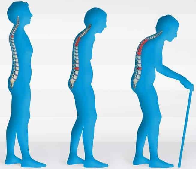 melawan osteoporosis dengan latihan yoga