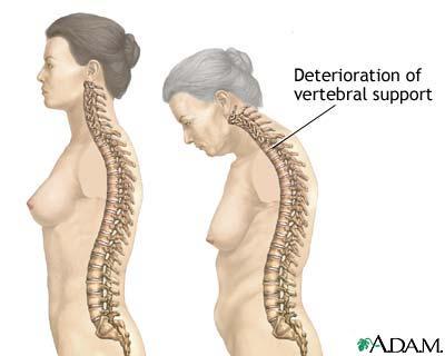 latihan yoga mencegah proses osteoporosis