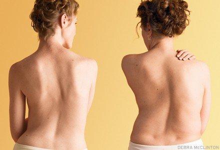 gerakan yoga bagi penderita scoliosis