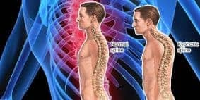 Mengembalikan Tulang Belakang Bungkuk dengan Yoga
