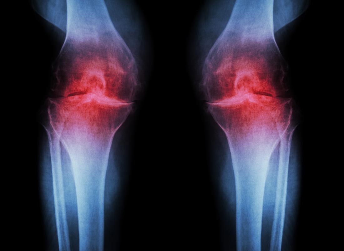 Manfaat Yoga Dapat Membantu Melawan Osteoarthritis?! 7